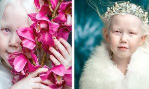 Настоящая «Белоснежка» из Сибири — юная модель с редчайшей внешностью