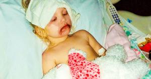 Ее маленькая дочка попала в больницу с ранами. И всё из-за покупки модной игрушки!