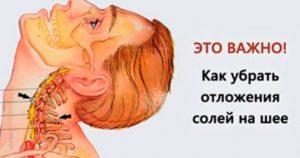 Это мощнейшее средство быстро уберет отложения солей на шее! Проверено на себе!