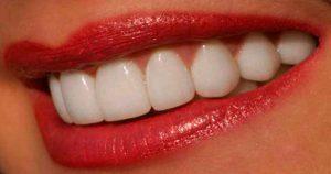 Я очень комплексовала из-за желтых зубов, пока не попробовала этот натуральный отбеливатель. Даже мой стоматолог удивлен результату