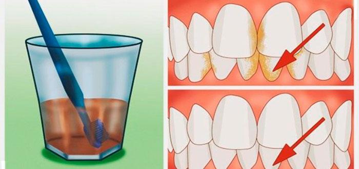 Вот лучшее средство для удаления зубного камня, воспаления десен и отбеливания зубов