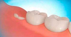 Новая технология позволяет вырастить собственные зубы всего за 9 недель