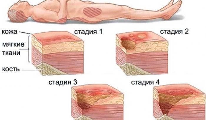 7 полезных способов использования пасты Теймурова