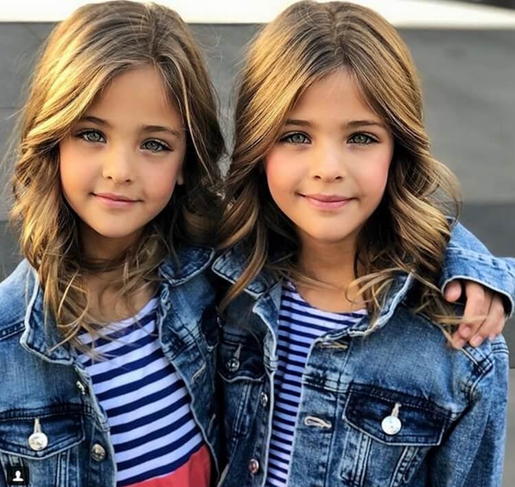 В 7 лет их назвали самыми красивыми близнецами в мире. Вот как они выглядят сейчас