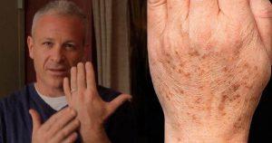 Американский доктор рекомендует: простой трюк быстро устранит пигментные пятна на коже. Всего 2 ингредиента.