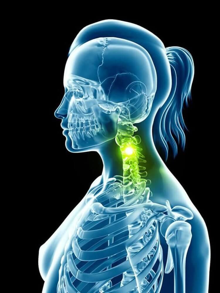 Упражнения для шеи: Освобождают от зажимов и нормализуют давление.