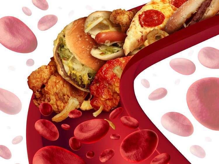 Пять продуктов, которые чистят сосуды от холестерина!