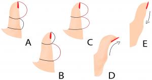 Большой палец вашей правой руки может рассказать о вас всё