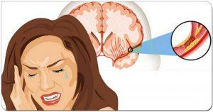 10 признаков, что вы уже пережили ″тихий инсульт″ — и худшее еще впереди