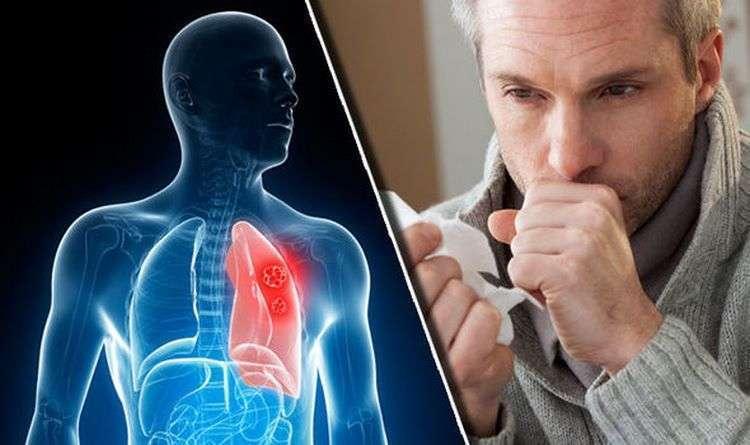 Как выгнать слизь и мокроту из горла и груди: список средств, которые работают