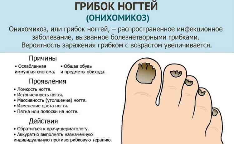 Йод против грибка ногтей: как избавиться от болезни всего за несколько процедур