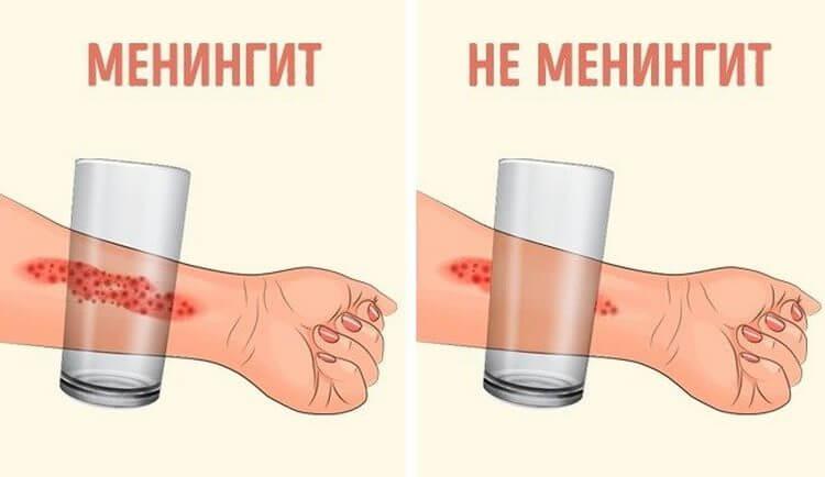 Эти 8 признаков менингита, которые обязан знать каждый родитель!