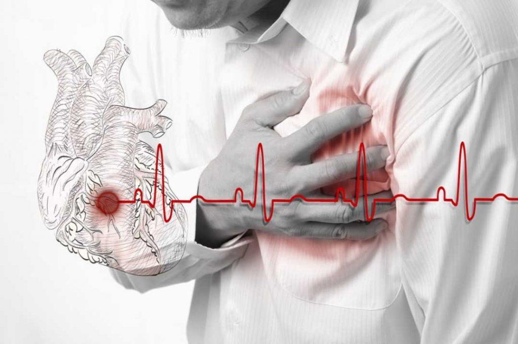 Эта настойка поставила меня на ноги после инфаркта. Прошло уже 20 лет, а чувствую себя прекрасно