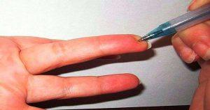 Можно снизить давление нажав всего на одну точку! Этим пользуются в военной медицине.