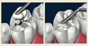 Ученые изобрели вечную пломбу, которая будет сама лечить зуб!