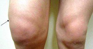 Лечение народными средствами коленей, суставов, артрита